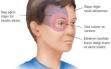 Geçmeyen baş ağrısının sebebi gözleriniz olabilir Haberi